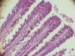 imagem de microscopia de teste com nanotubos e chumbo mostra filamentos das brânquias deformados e inchados em comparação com o grupo-controle