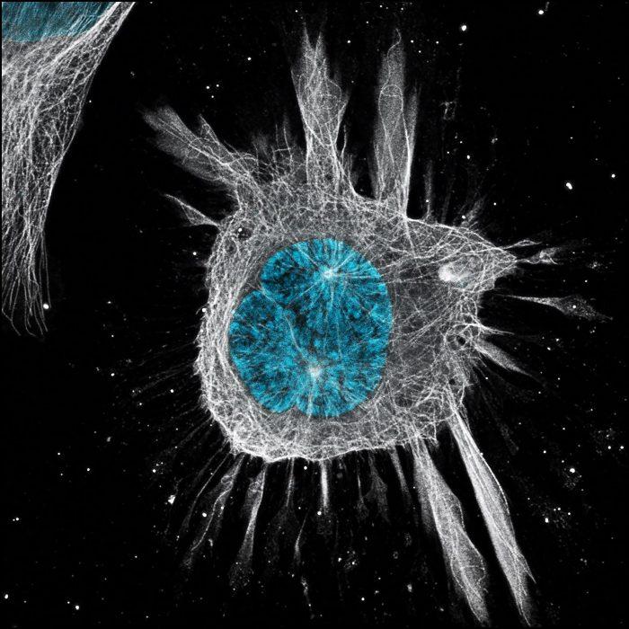 Célula de meduloblastoma humano. Foto de Beatriz de Araújo Cortez, primeira colocada na classificação geral e na categoria <em>fluorescência</em>